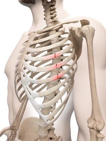 accidental: Broken ribs, illustration