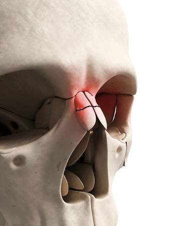 accidental: Broken nose, illustration
