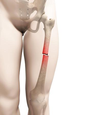 accidental: Broken thigh bone, illustration