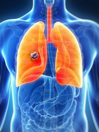 Human lung cancer, computer artwork