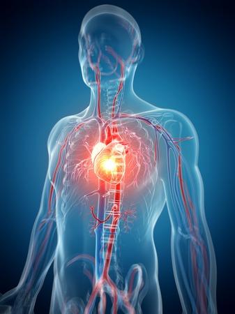 riesgo biologico: Ataque cardíaco humano, ilustraciones de computadora LANG_EVOIMAGES