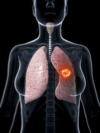 Female lung cancer, computer artwork LANG_EVOIMAGES