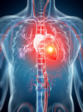 Human heart attack, computer artwork LANG_EVOIMAGES