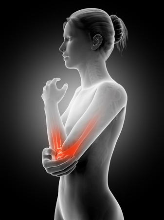 Human elbow joint pain, illustration