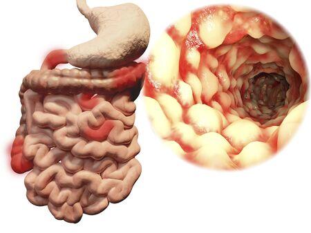 ileum: Crohns disease, illustration