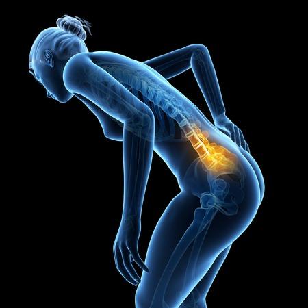 Human back pain, illustration LANG_EVOIMAGES