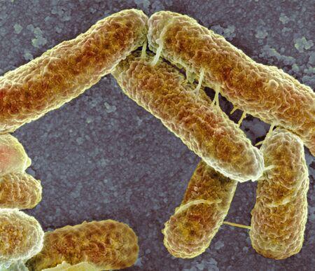 E. coli bacteria, SEM LANG_EVOIMAGES