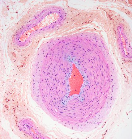 micrograph: Blood vessels, light micrograph LANG_EVOIMAGES