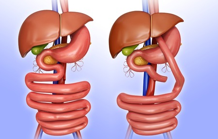 Computer illustration of the abdomen before (left) and after (right) a gastric bypass