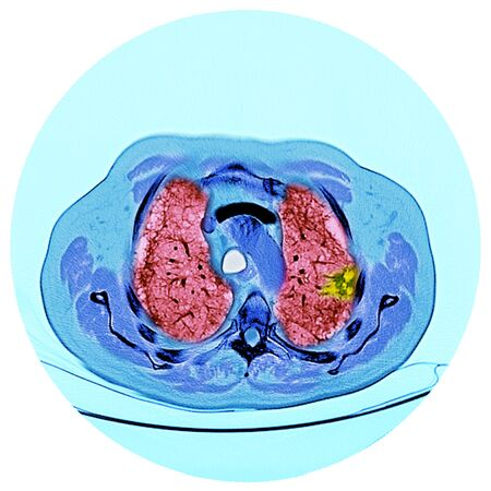 Lung cancer, CT scan LANG_EVOIMAGES