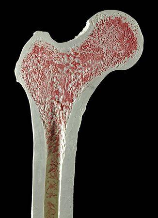 cancellous: Upper right femur (leg bone)