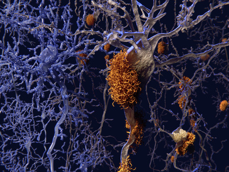 neurone: Brain nerve cells affected by alzheimers