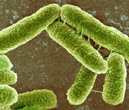 pili: E. coli bacteria, SEM LANG_EVOIMAGES