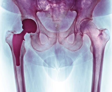 sectioned: Total hip replacement, X-ray LANG_EVOIMAGES