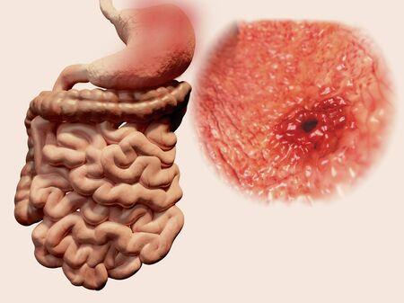 Gastric ulcer, illustration