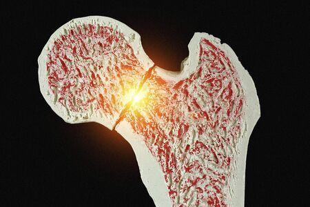 cancellous: Fractured hip, artwork LANG_EVOIMAGES