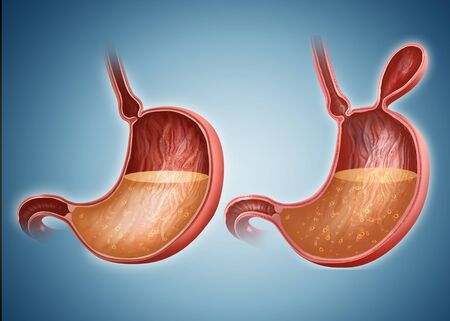 hernia: Stomach with and without hernia LANG_EVOIMAGES