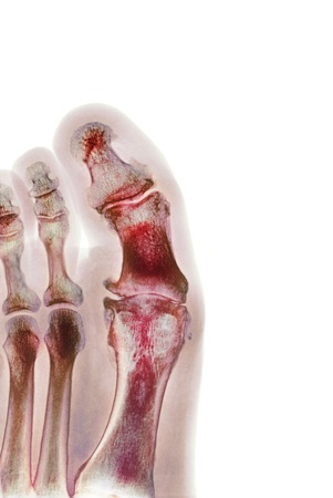 phalanges: Degenerative foot deformation, X-ray