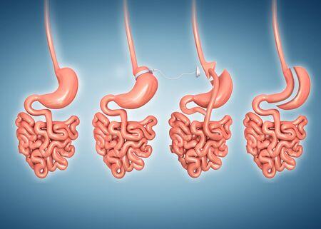 esofago: Cirugía de pérdida de peso, ilustración de la computadora
