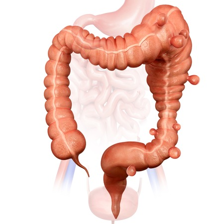 Megacolon and diverticulitis LANG_EVOIMAGES