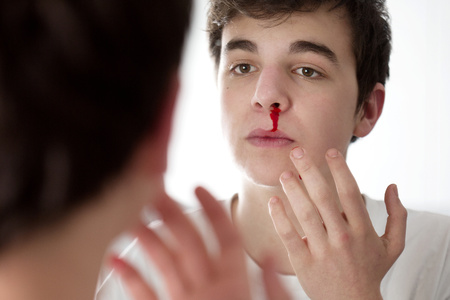 bleed: Young man with nose bleed