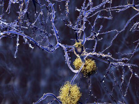 atrophy: Alzheimers disease