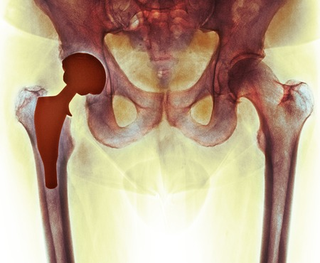 radiological: Total hip replacement, X-ray LANG_EVOIMAGES