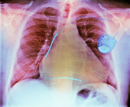 Pacemaker in heart disease, X-ray LANG_EVOIMAGES