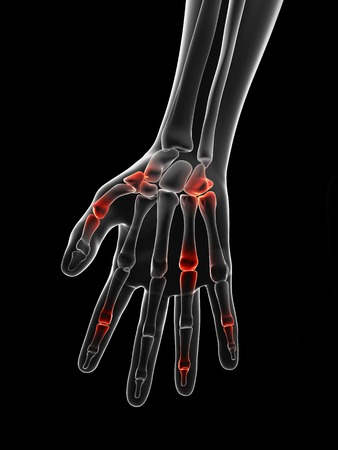 phalanges: Human finger joint pain, Illustration LANG_EVOIMAGES