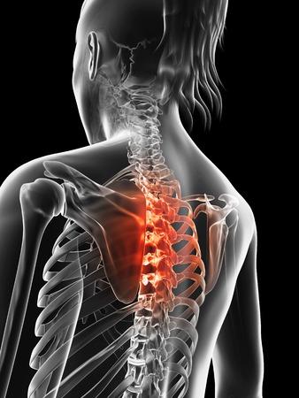 thoracic: Human thoracic spine pain, Illustration