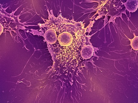 antigenic: Cancer cell and T lymphocytes, SEM LANG_EVOIMAGES