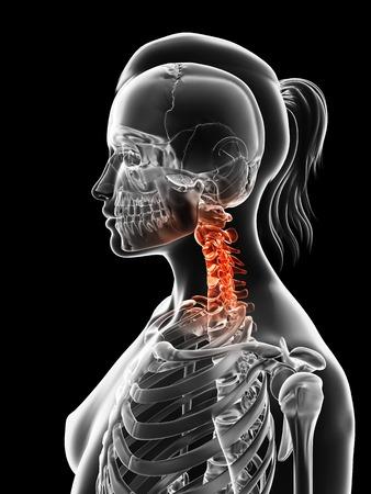 skeletal system: Human cervical spine pain, Illustration