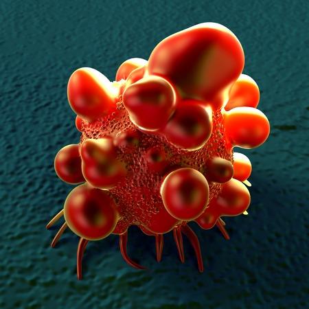 Bowel cancer cell, illustration LANG_EVOIMAGES