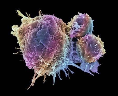 Cancer cell and T lymphocytes, SEM LANG_EVOIMAGES