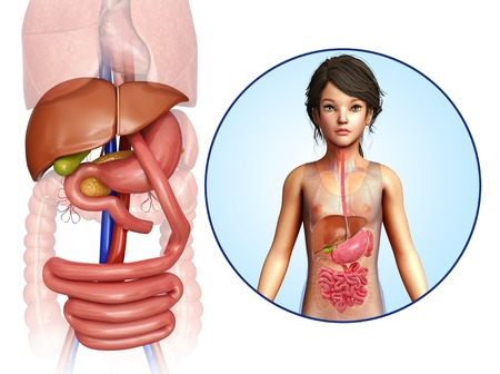 small intestine: Gastric bypass, illustration LANG_EVOIMAGES