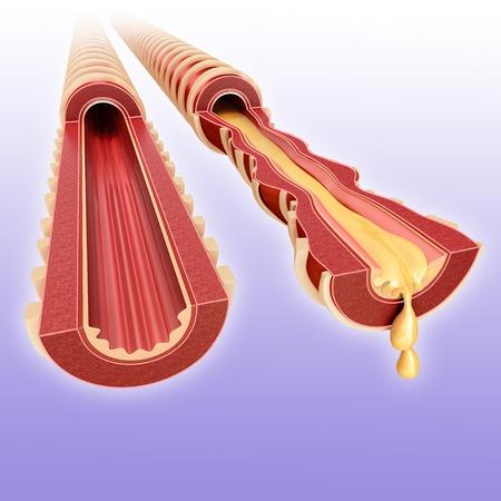 bronchioles: Infected bronchus, illustration