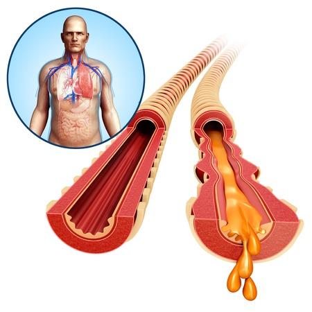bronchioles: Infected bronchi, illustration LANG_EVOIMAGES