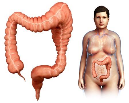 intestino grueso: Megacolon, ilustración