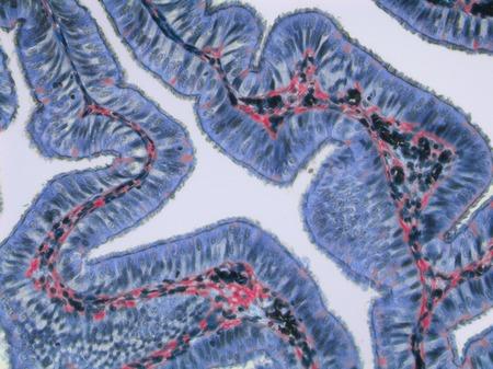 Fallopian tube, LM LANG_EVOIMAGES