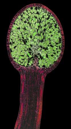 spore: Liverwort spore capsule, LM