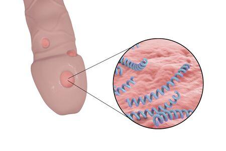 Male syphilis, illustration