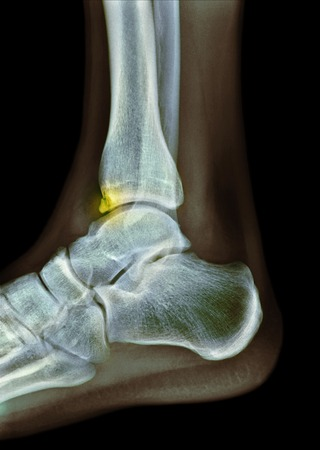 radiological: Tibial spur, X-ray