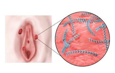 syphilis: Female syphilis, illustration