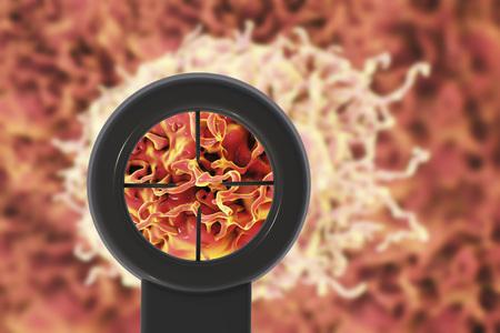 Anticancer treatment. Conceptual illustration