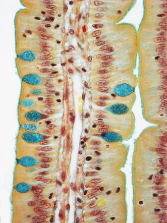 sectioned: Small intestine, LM