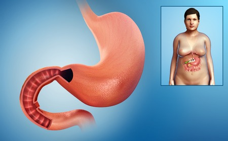 duodenum: Female stomach and duodenum, illustration LANG_EVOIMAGES