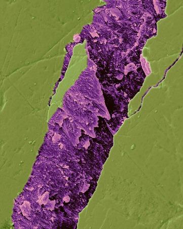 Human tooth fractured enamel, SEM LANG_EVOIMAGES