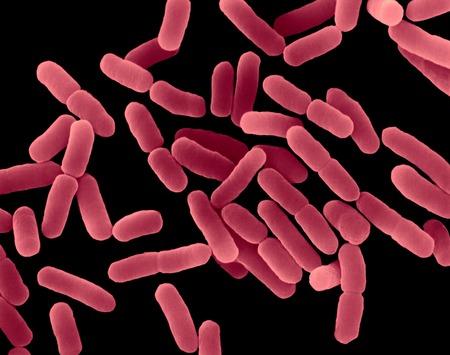 acquired: E. coli, bacterium, SEM