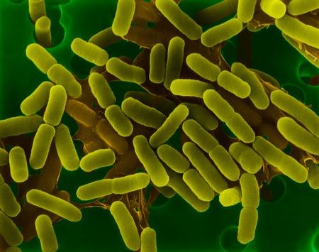 E. coli, bacterium, SEM