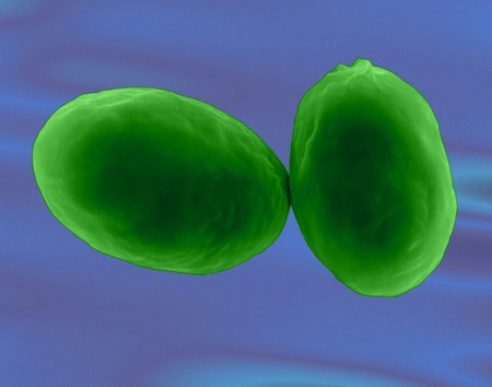 Giardia lamblia protozoan, SEM LANG_EVOIMAGES